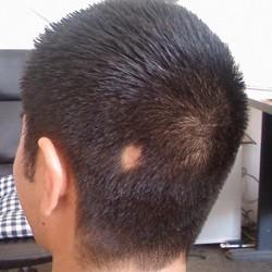 Алопеция (облысение, выпадение волос). Причины, виды, лечение и ...