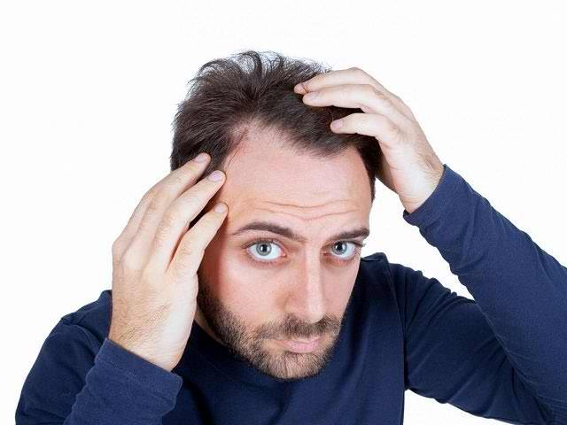 Алопеция у мужчин: клиническая картина