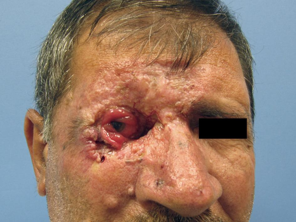 Базалиома кожи (базально-клеточный рак) - прогноз, рецидивы, лечение