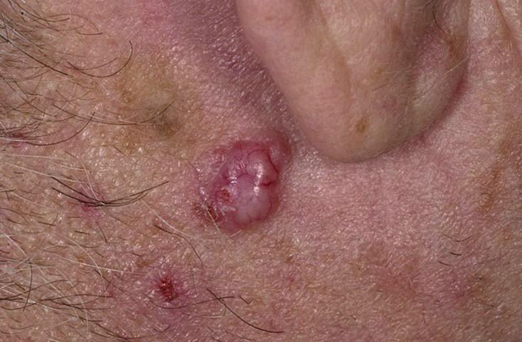 Базально-клеточный рак - базалиома