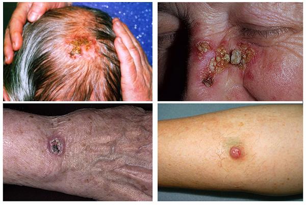 Как выглядит начальная стадия рака кожи с фото, симптомы и ...