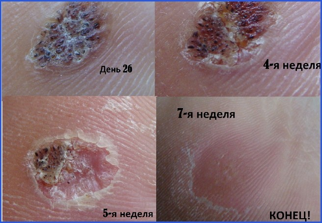 Бородавка на пальце: причины, лечение и способы удаления