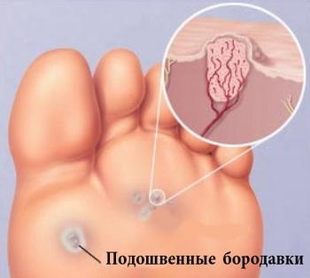 Папиллома на ноге: фото, как избавиться?