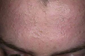 Лечение комедонов на лице. Закрытые и открытые комедоны.
