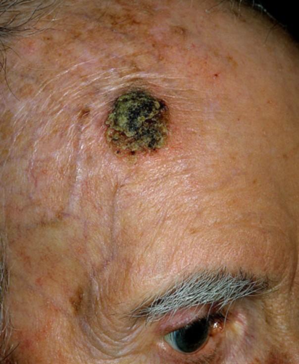 Плоскоклеточный рак кожи: симптомы, диагностика, лечение