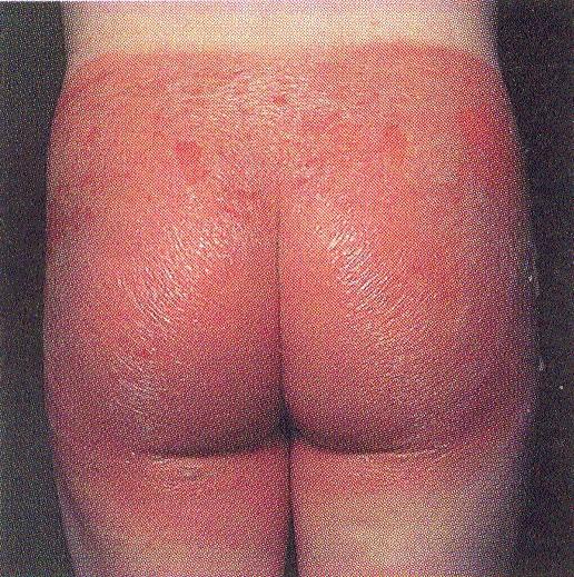Дерматит на ягодицах у взрослых и детей - причины и способы лечения