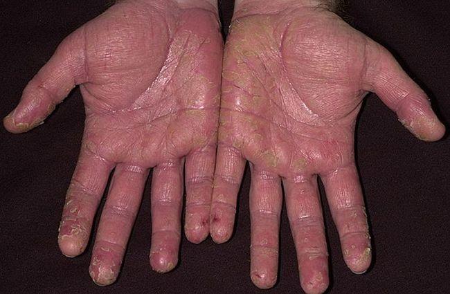 Дерматит сухого типа - данный тип болезни проявляется, в большинстве случаев, в зимнее время по причине воздействия на организм холода и ветра