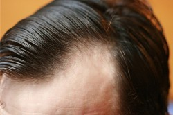 Очаговая алопеция у мужчин: лечение, диагностика