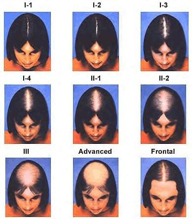 Фото разных видов диффузного облысения у женщин.