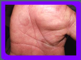 Полиморфная (многоформная) экссудативная эритема: фото, что это ...