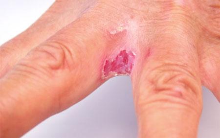 Экзема на руках - лечение, причины, симптомы и фото, как и чем ...
