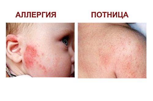 Как выглядит потничка на лице у грудничка: проявления, фото