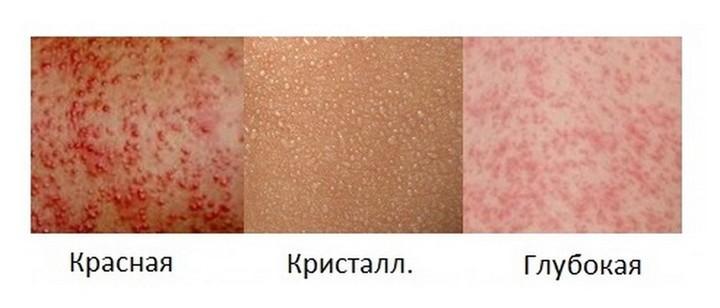 Потничка у грудничка на шее: симптомы, лечение, фото