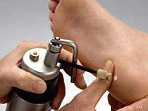 Удаление бородавок жидким азотом - последствия, недостатки и ...