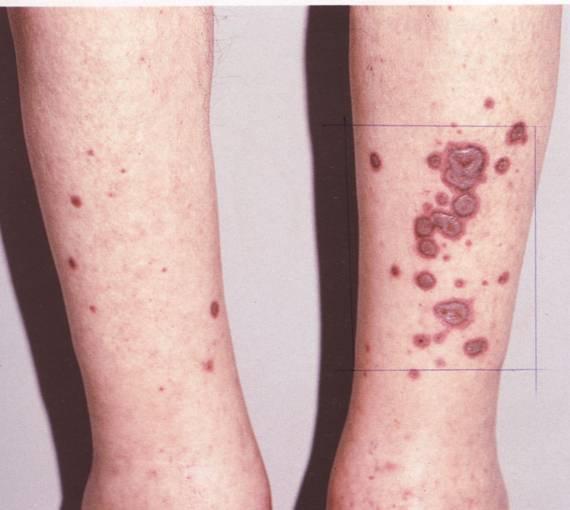 Узловатая эритема на ногах у взрослых и детей