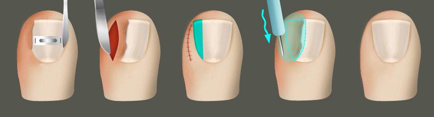 Удаление вросшего ногтя | Медицинская клиника
