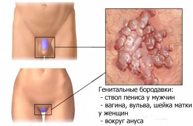 Вирус папилломы человека: симптомы, методы диагностики и лечения