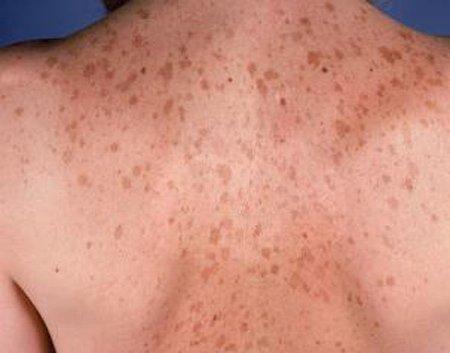 5. Гиперпигментация кожи
