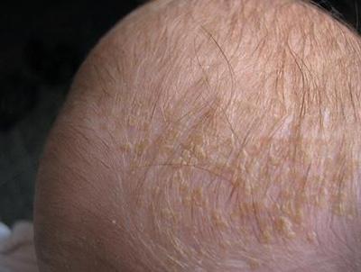 Себорея у детей и новорожденных: фото и лечение себореи