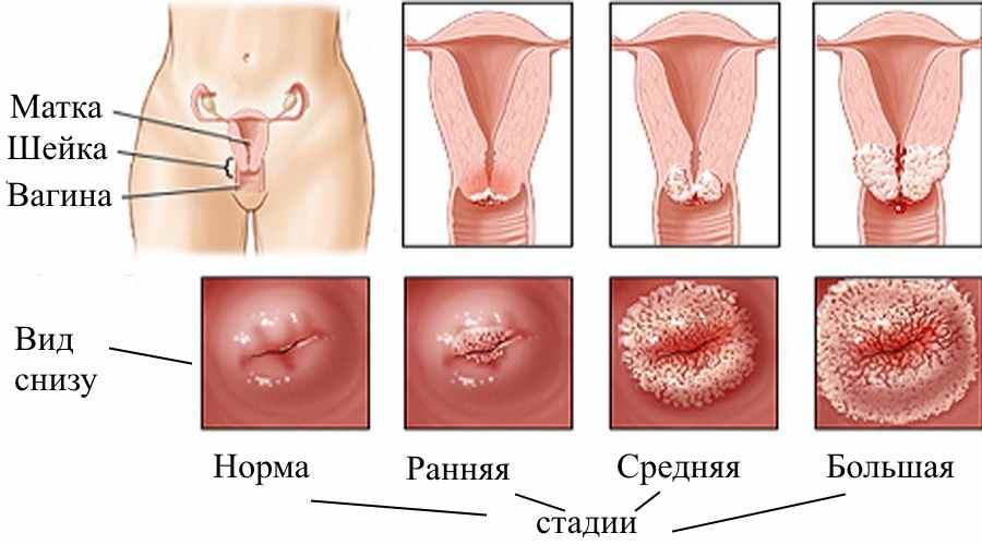 Папиллома человека у женщин на шейке матки лечение