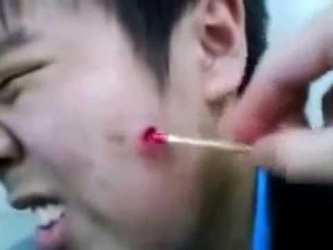 Выдавили гнойный прыщ-фурункул у китайца. - YouTube