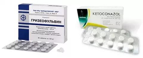 Гризеофульвин и Кетоконазол