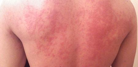 Идиопатическая крапивница: симптомы, причины, лечение