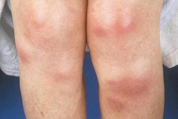 Узловатая эритема. Лечение на ногах, фото | Эритема