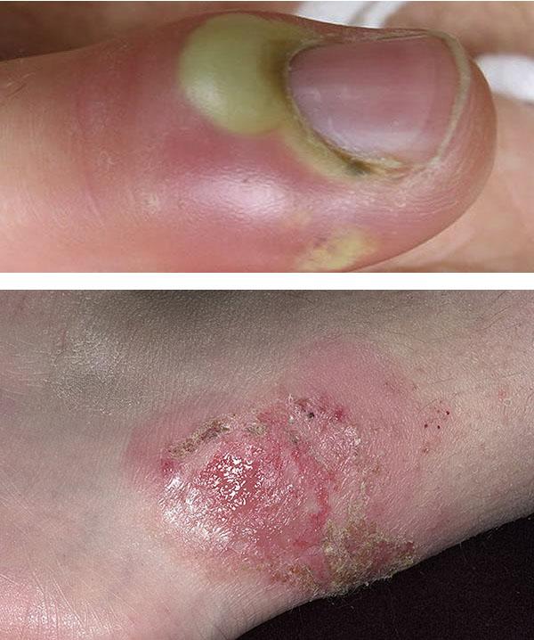 Виды импетиго, симптомы и лечение заболевания