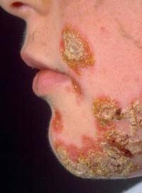 Стрептодермия у взрослых: кожная инфекция