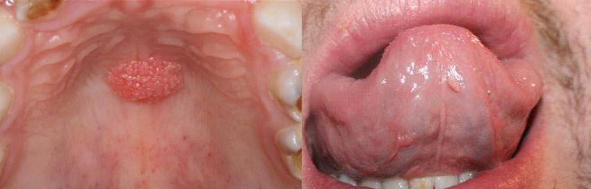Папилломы во рту