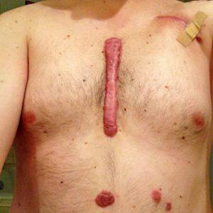 Келоидные рубцы: лечение, профилактика ⋆ Клиника Спиженко