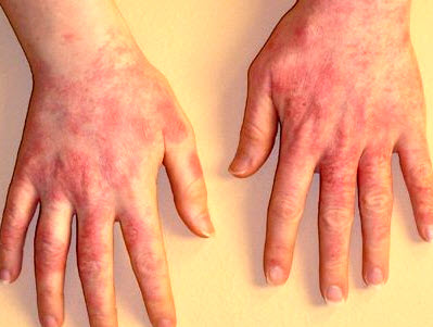 Контактный (аллергический) дерматит: фото, причины, симптомы ...