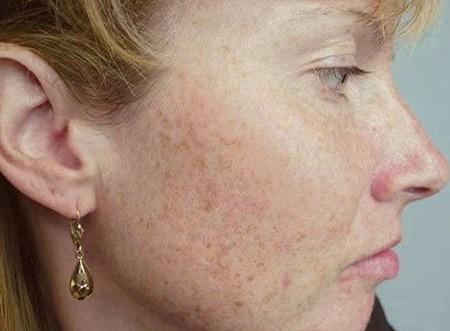 Аллергия часто проявляется на лице в виде мелких высыпаний, которые сильно зудят