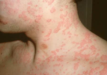 Симптомы, лечение и профилактика крапивницы