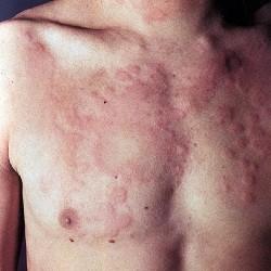 Крапивница: симптомы, лечение, причины появления