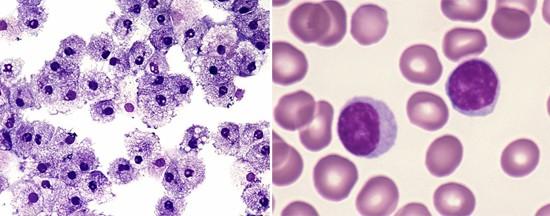 лейкоциты и лимфоциты (фото)