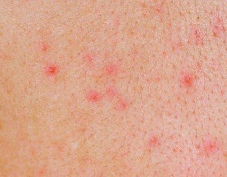 Маленькие красные точки на теле: от чего появляются и что означают