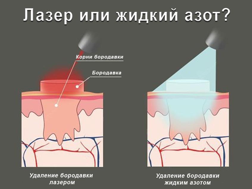 Удаление подошвенной бородавки жидким азотом или лазером - что ...