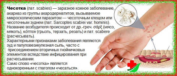 Лечение чесотки в домашних условиях — chelexport.ru