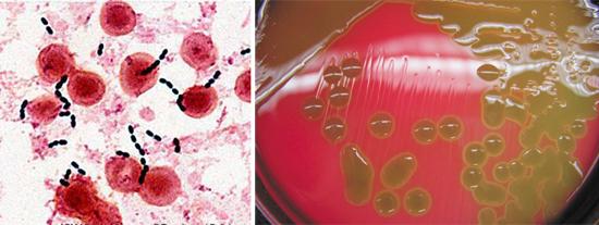 стрептококки под микроскопом
