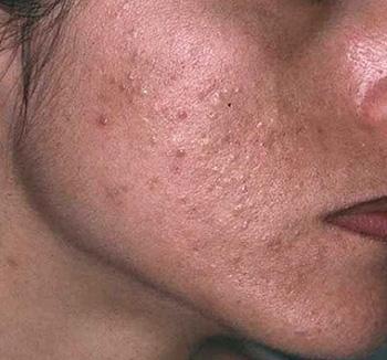 Жирная себорея лица