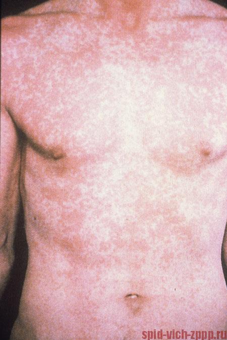 Фото ВИЧ, СПИДа на коже у мужчины и женщины (признаки, проявления ...