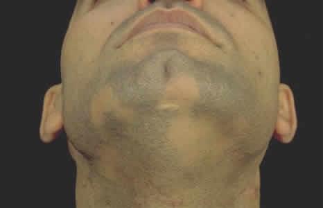 Алопеция у мужчин на бороде: как вылечить в короткие сроки