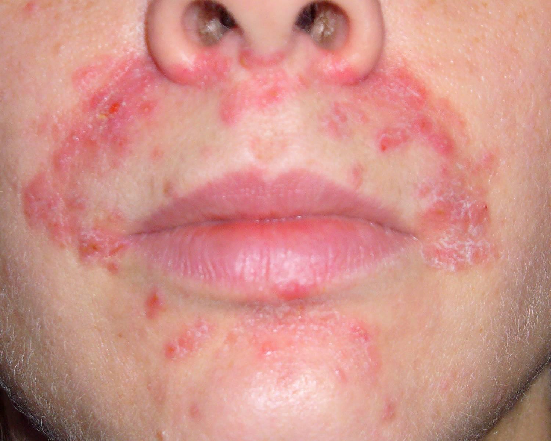 Дерматит на лице - следствие воспаления эпидермиса вследствие влияния различных раздражителей