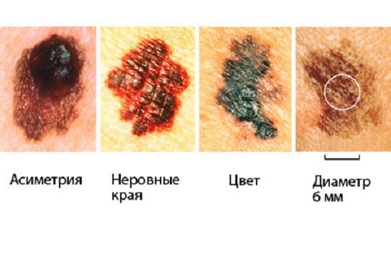 Меланома - причины, признаки и симптомы, лечение