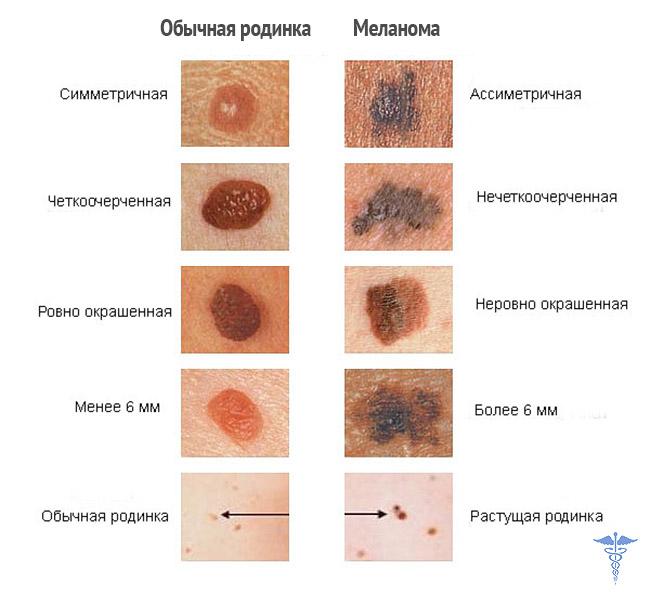 Меланома: причины, симптомы, фото и лечение рака кожи