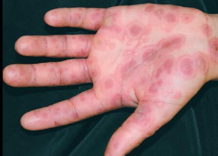 Многоформная экссудативная эритема: фото, лечение