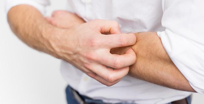 Мифы и факты об аллергии | Abbott Laboratories
