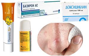 Антибиотики при акне на лице